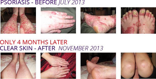 Before and After Images: Psoriasis - Before July 2013 and ONLY 4 MONTHS LATER Clear Skin - After November 2013